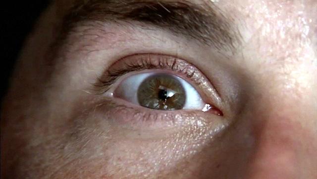 Jack's Eye Lost